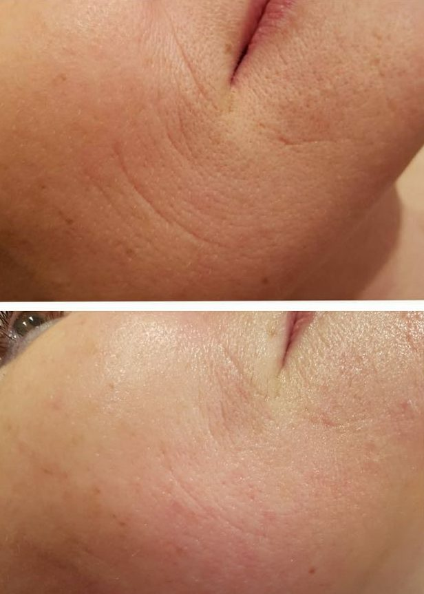 Microdermabrasion - Before & After 6 Week treatment